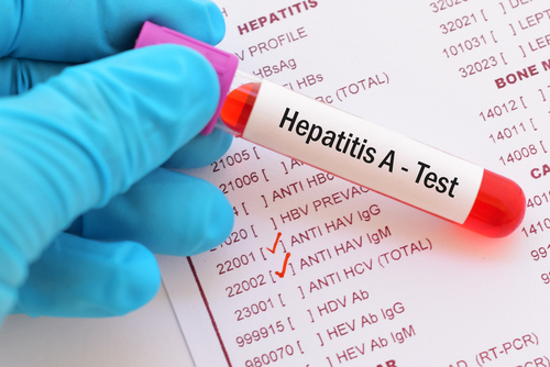 Over 800 hepatitis A cases reported in La. outbreak