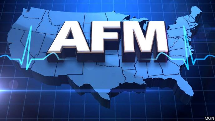 First case of Acute Flaccid Myelitis confirmed in Michigan