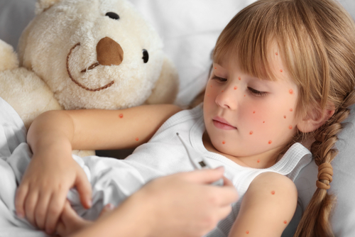 Chickenpox parties and natural immunity: Your questions answered