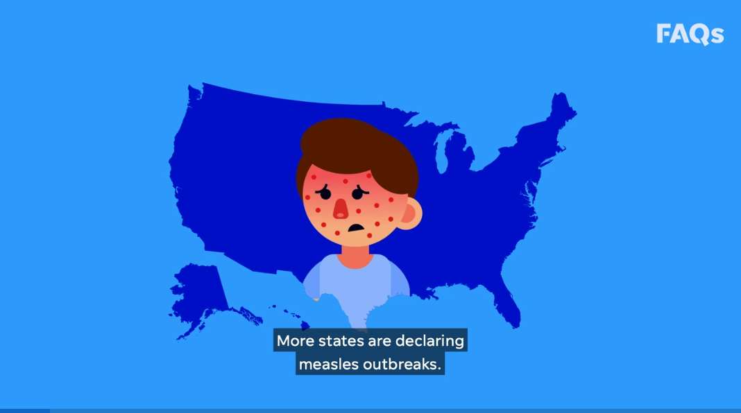 Measles outbreak grows to 34 cases in Michigan, includes infant