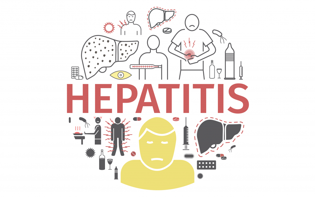 MDHHS continuing investigation of hepatitis A outbreak that has resulted in 920 cases in Michigan, including 30 deaths