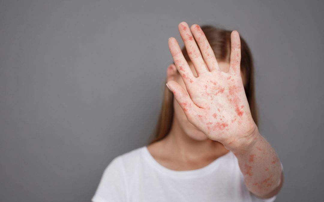 Connecticut confirms 4th case of measles